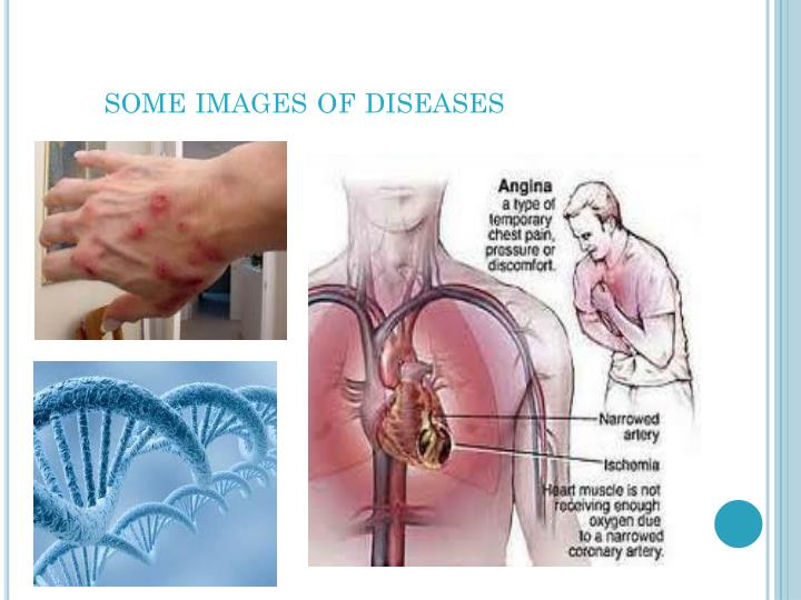 Some images of diseases