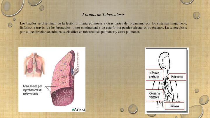 PPT - La tuberculosis PowerPoint Presentation - ID:2187143