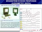 brainstem evoked response audiometry bera