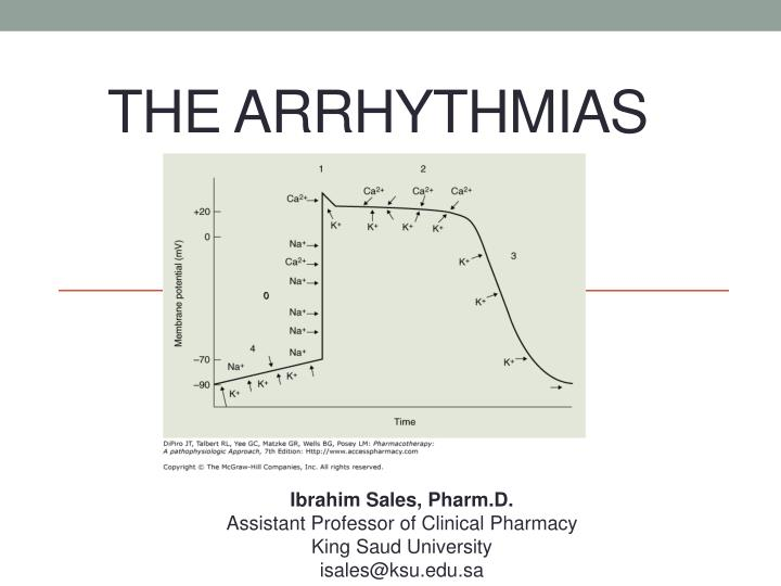 the arrhythmias n.