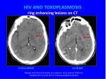 hiv and toxoplasmosis ring enhancing lesions on ct