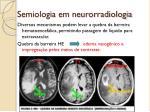 semiologia em neurorradiologia3