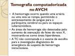 tomografia computadorizada no avch