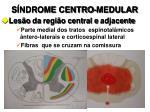 s ndrome centro medular