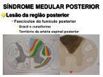 s ndrome medular posterior