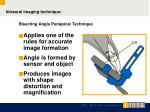 bisecting angle periapical technique