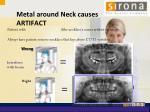 metal around neck causes artifact