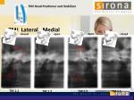 tmj lateral medial