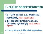ii failure of differentiation