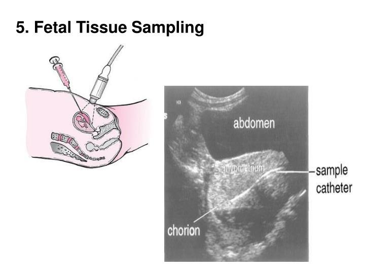 5. Fetal Tissue Sampling