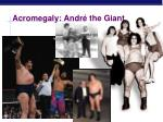 acromegaly andr the giant