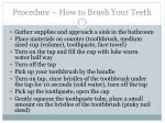 procedure how to brush your teeth