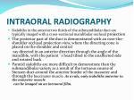 intraoral radiography