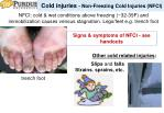 cold injuries non freezing cold injuries nfci