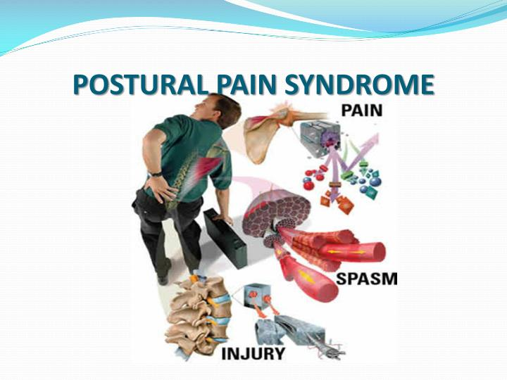 postural pain syndrome n.