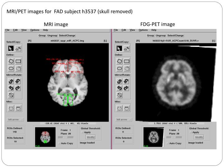 MRI/PET images for  FAD subject