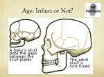 age infant or not