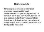 rinitele acute4