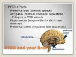ptsd and your brain