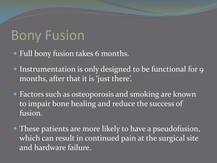 Bony Fusion