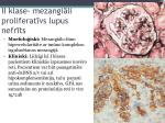 ii klase mezangi li proliferat vs lupus nefr ts