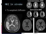 mri in stroke