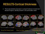 results cortical thickness
