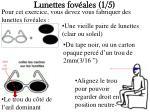 lunettes fov ales 1 5
