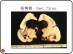 kernicterus1