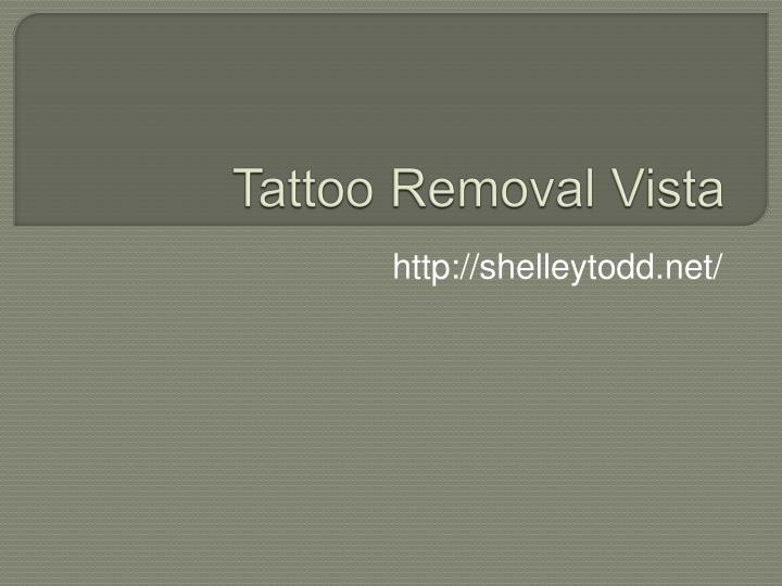 t attoo removal vista n.