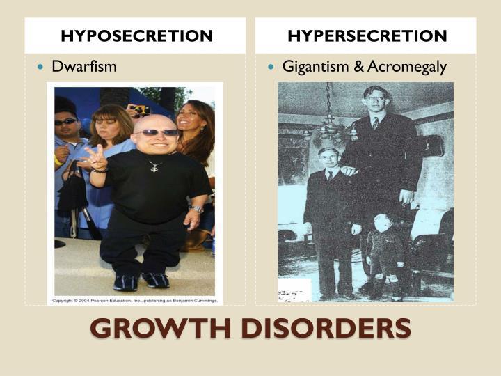 HYPOSECRETION