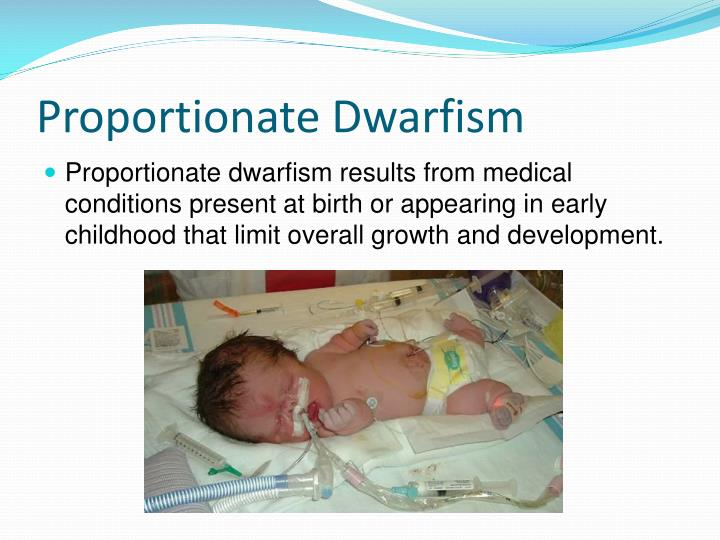 Proportionate Dwarfism