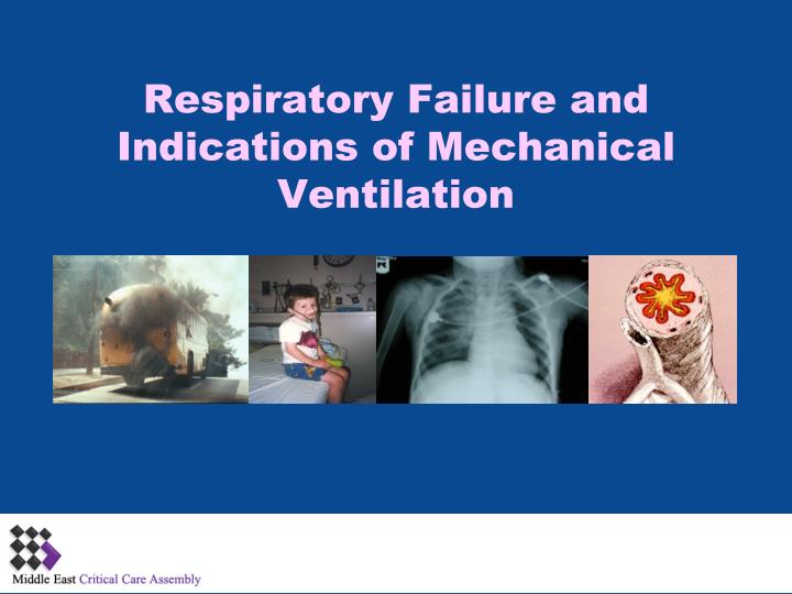 respiratory failure and indications of mechanical ventilation n.