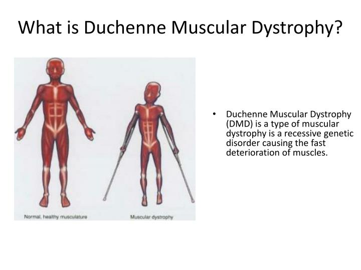 an analysis of the muscular dystrophies and the duchenne muscular dystropy Myotonic dystrophy gene analysis southern blot analysis of the myotonic dystrophy gene was done as previously described [buxton et al, 19921 discussion we have presented a patient who has myotonic dystrophy and duchenne muscular dystrophy dmd was diagnosed initially on the.