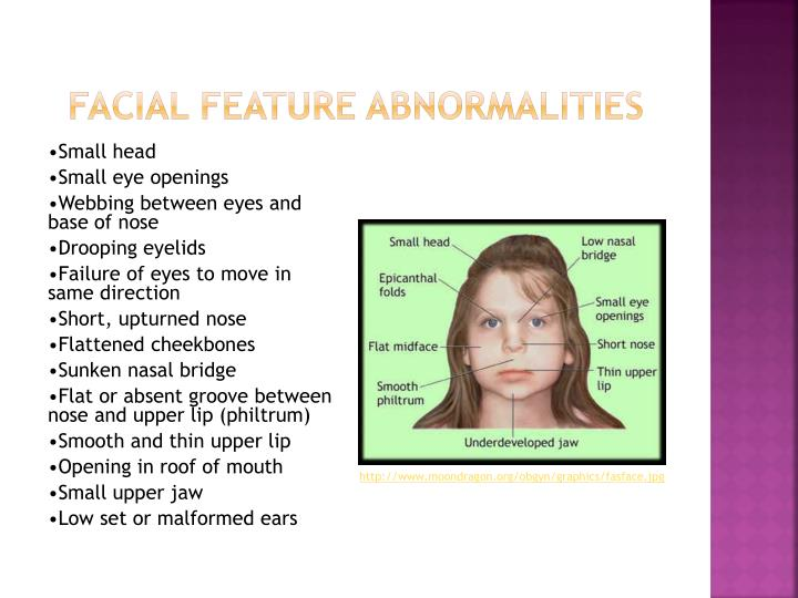 Facial Feature abnormalities