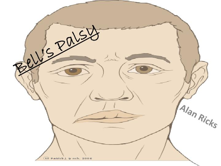 bell s palsy n.