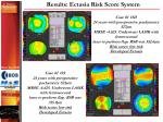 results ectasia risk score system