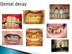 dental decay