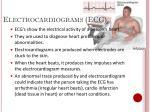 electrocardiograms ecg
