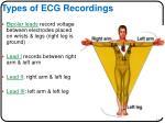 types of ecg recordings