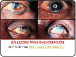 eye lesions from onchocerciasis