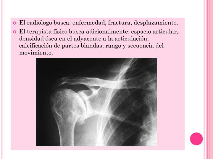 El radiólogo busca: enfermedad, fractura, desplazamiento.