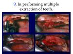 9 in performing multiple extraction of teeth