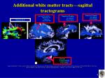 additional white matter tracts sagittal tractograms