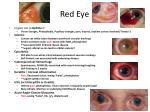 red eye1