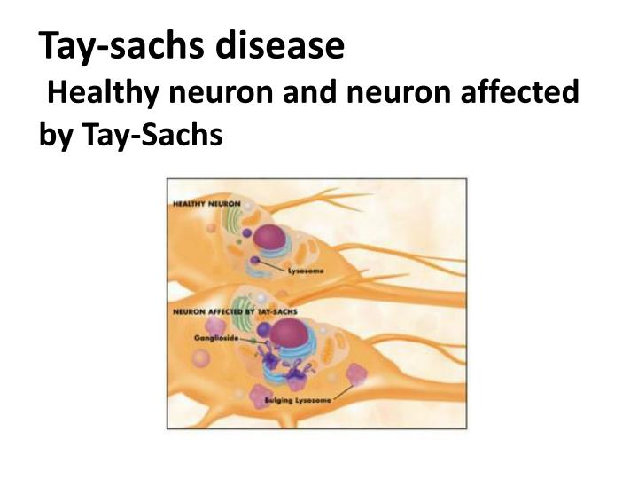 a deadly disorder tay sach essay Tay-sach's disease case study stephanie dedianous, rn western governors university tay-sach's case study the purpose of this paper is to discuss the.