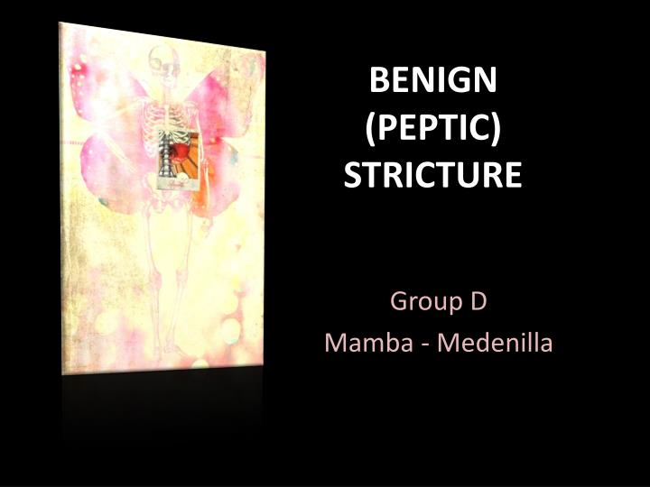benign peptic stricture n.
