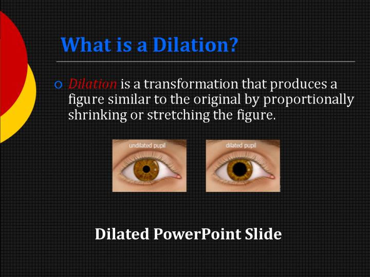 what is a dilation n.