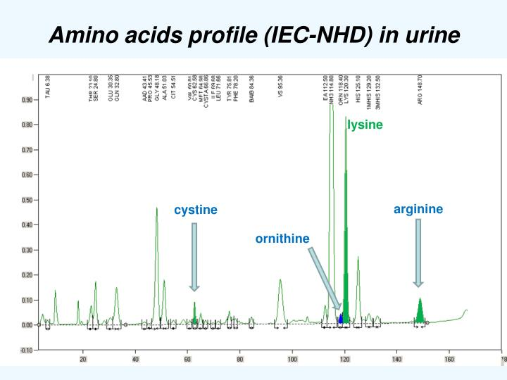 Amino acids profile (IEC-NHD) in urine