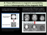 2 these differences in magnetic susceptibility produce inhomogeneity of the magnetic field